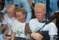 Sierra Leone: Albinism Awareness Day celebrations