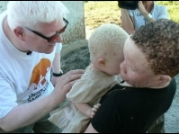 Surrey,BC:Fundraiser for albinos in Africa